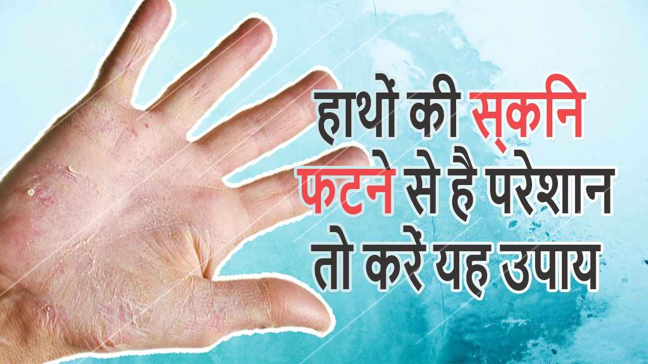 Hathon Ki Skin Fatne Se Bachane Ke Upay in Hindi