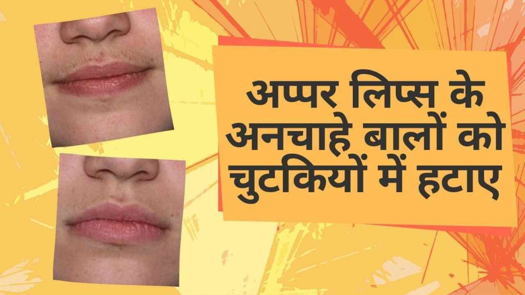 Upper Lips Hair Removal Home Remedies In Hindi